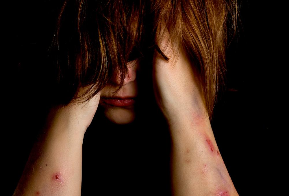 Imagen de un adolescente con trastorno límite de la personalidad
